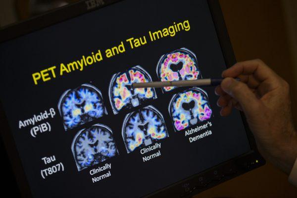 研究发现人脑到30岁才发育成熟