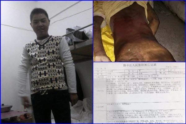 雷文锋在托养中心仅45天死亡 死前瘦得皮包骨