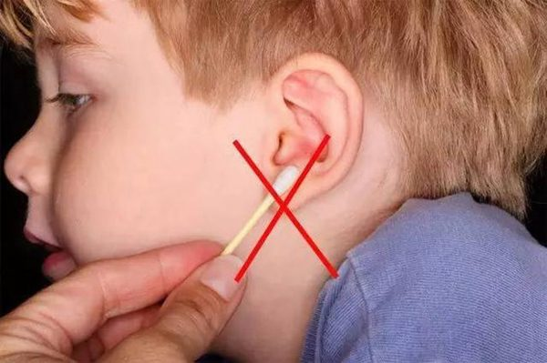 耳垢 湿性