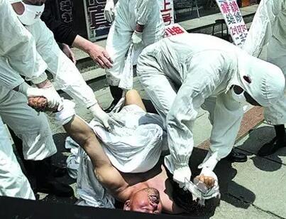 ▲狂犬病病发(网络图片)