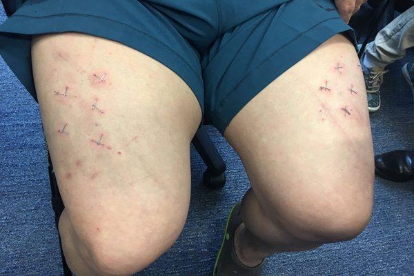林子健被人用钉书机的钉钉在他大腿,说给他十字架, 最后他被弃置在海滩。(图片由民主党提供)