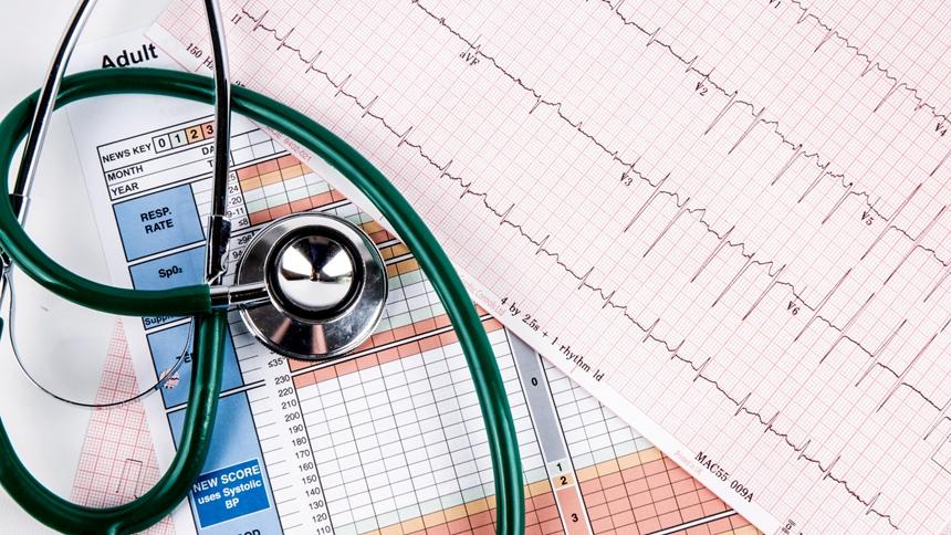 心電圖、心血管(圖片:Public Domain)
