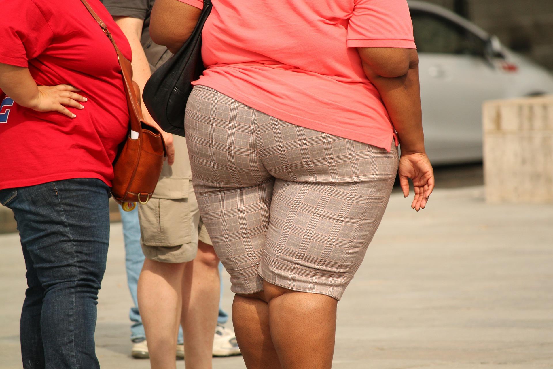 肥胖可能是营养不良(pixabay)
