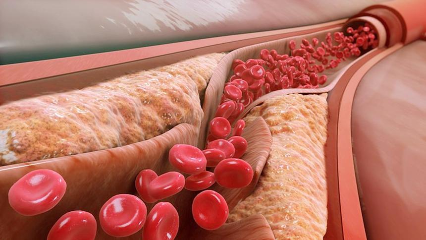 血管  (圖片:Manu5/WikimediaCommons,CC BY-SA 4.0)